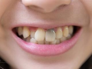 Dlaczego zęby żółkną?