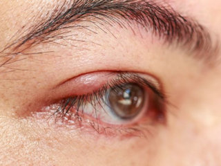 Jęczmień na oku – po czym go rozpoznać i jak leczyć